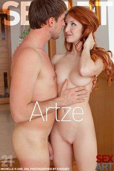 Artze